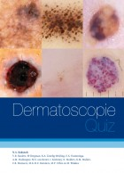 Dermatoscopie Quiz